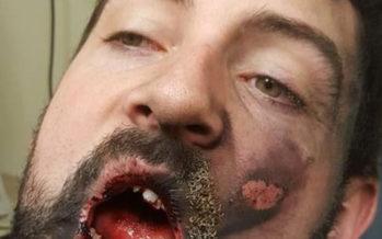 Sähkötupakka räjähti miehen suussa – karmaiseva seuraus